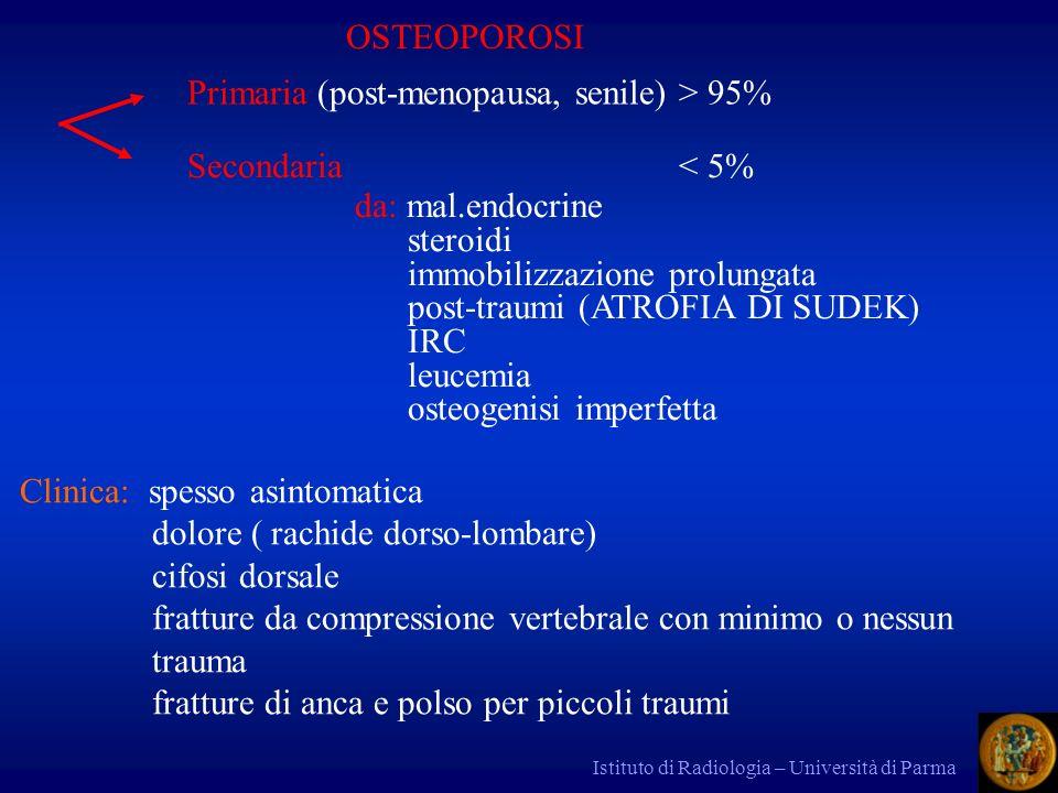 Istituto di Radiologia – Università di Parma Primaria (post-menopausa, senile) > 95% OSTEOPOROSI Secondaria < 5% da: mal.endocrine steroidi immobilizz