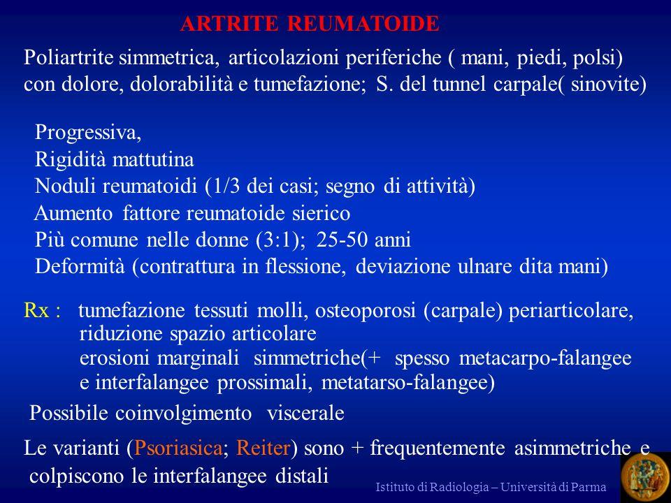 Istituto di Radiologia – Università di Parma ARTRITE REUMATOIDE Poliartrite simmetrica, articolazioni periferiche ( mani, piedi, polsi) con dolore, do