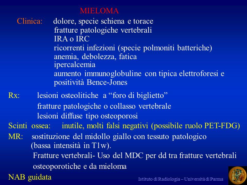Istituto di Radiologia – Università di Parma MIELOMA Clinica: dolore, specie schiena e torace fratture patologiche vertebrali IRA o IRC ricorrenti inf
