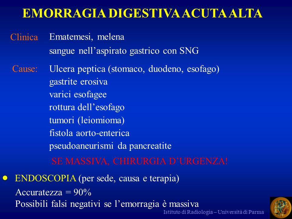Istituto di Radiologia – Università di Parma Clinica Ematemesi, melena sangue nellaspirato gastrico con SNG EMORRAGIA DIGESTIVA ACUTA ALTA Cause: Ulce