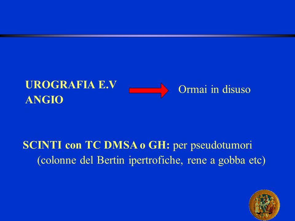 UROGRAFIA E.V ANGIO Ormai in disuso SCINTI con TC DMSA o GH: per pseudotumori (colonne del Bertin ipertrofiche, rene a gobba etc)