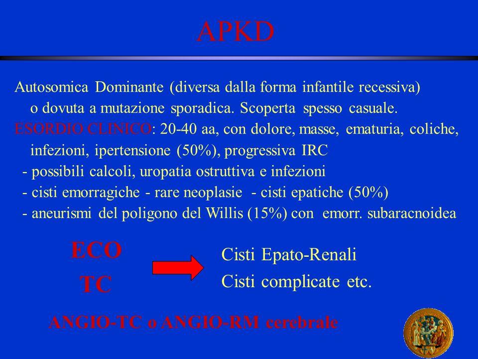 APKD Autosomica Dominante (diversa dalla forma infantile recessiva) o dovuta a mutazione sporadica. Scoperta spesso casuale. ESORDIO CLINICO: 20-40 aa