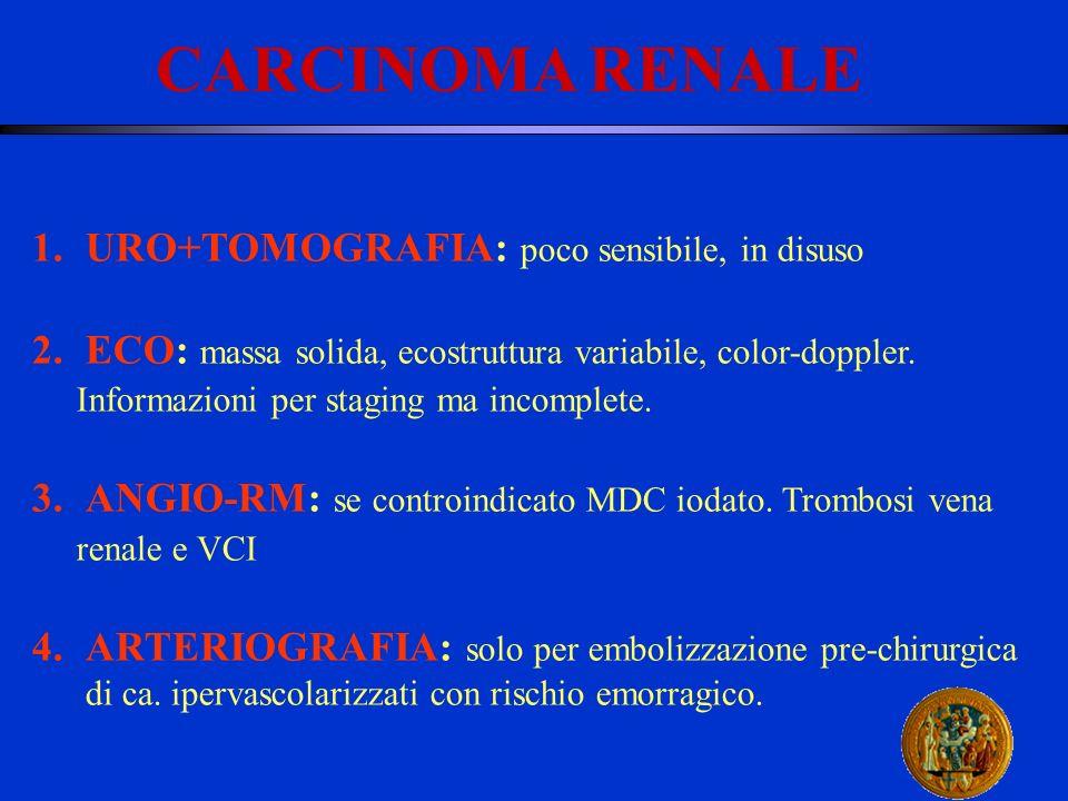CARCINOMA RENALE 1.URO+TOMOGRAFIA: poco sensibile, in disuso 2.ECO: massa solida, ecostruttura variabile, color-doppler. Informazioni per staging ma i