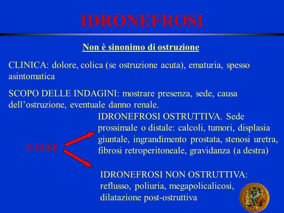 IDRONEFROSI Non è sinonimo di ostruzione CLINICA: dolore, colica (se ostruzione acuta), ematuria, spesso asintomatica SCOPO DELLE INDAGINI: mostrare p