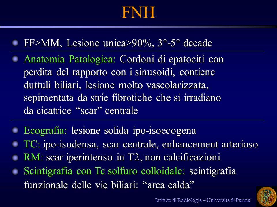 Istituto di Radiologia – Università di Parma FNH FF>MM, Lesione unica>90%, 3°-5° decade Anatomia Patologica: Cordoni di epatociti con perdita del rapp
