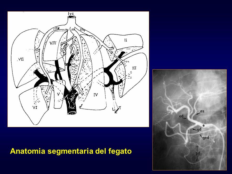Istituto di Radiologia – Università di Parma FNH FF>MM, Lesione unica>90%, 3°-5° decade Anatomia Patologica: Cordoni di epatociti con perdita del rapporto con i sinusoidi, contiene duttuli biliari, lesione molto vascolarizzata, sepimentata da strie fibrotiche che si irradiano da cicatrice scar centrale Ecografia: lesione solida ipo-isoecogena TC: ipo-isodensa, scar centrale, enhancement arterioso RM: scar iperintenso in T2, non calcificazioni Scintigrafia con Tc solfuro colloidale: scintigrafia funzionale delle vie biliari: area calda