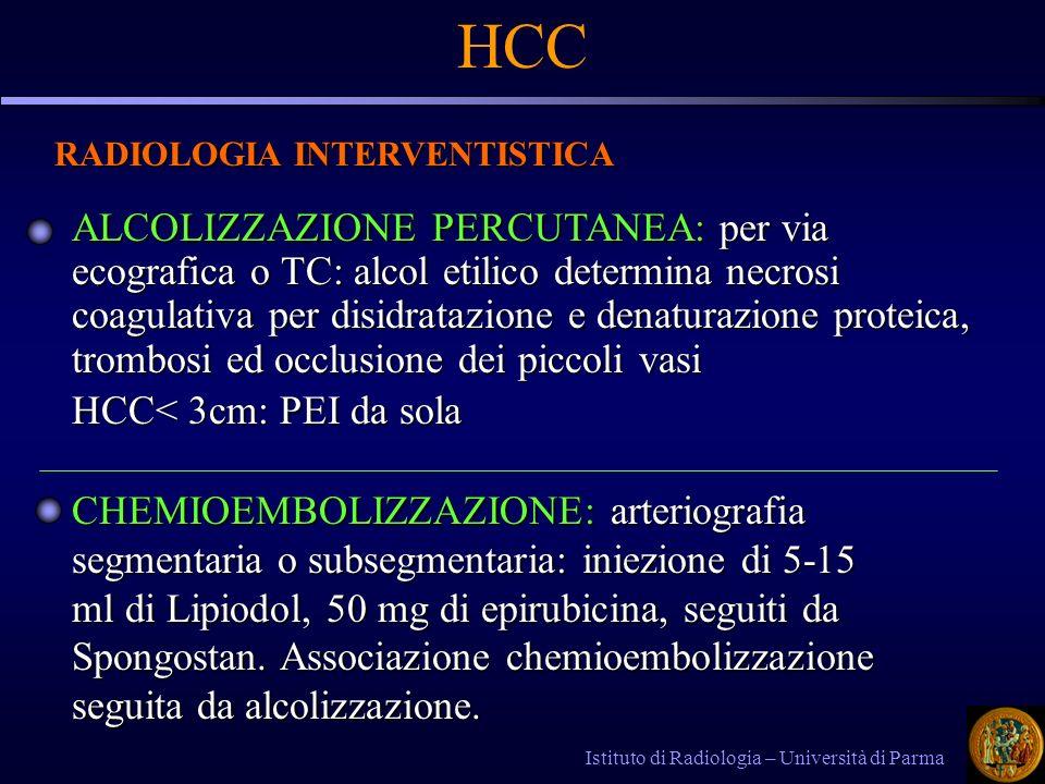 Istituto di Radiologia – Università di Parma HCC RADIOLOGIA INTERVENTISTICA ALCOLIZZAZIONE PERCUTANEA: per via ecografica o TC: alcol etilico determina necrosi coagulativa per disidratazione e denaturazione proteica, trombosi ed occlusione dei piccoli vasi HCC< 3cm: PEI da sola CHEMIOEMBOLIZZAZIONE: arteriografia segmentaria o subsegmentaria: iniezione di 5-15 ml di Lipiodol, 50 mg di epirubicina, seguiti da Spongostan.