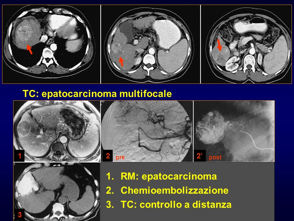 TC: epatocarcinoma multifocale 1. 1.RM: epatocarcinoma 2. 2.Chemioembolizzazione 3. 3.TC: controllo a distanza 1 3 22 prepost