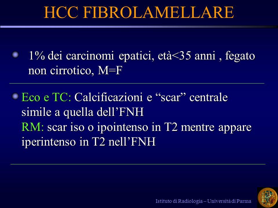 Istituto di Radiologia – Università di Parma HCC FIBROLAMELLARE Eco e TC: Calcificazioni e scar centrale simile a quella dellFNH RM: scar iso o ipointenso in T2 mentre appare iperintenso in T2 nellFNH 1% dei carcinomi epatici, età<35 anni, fegato non cirrotico, M=F