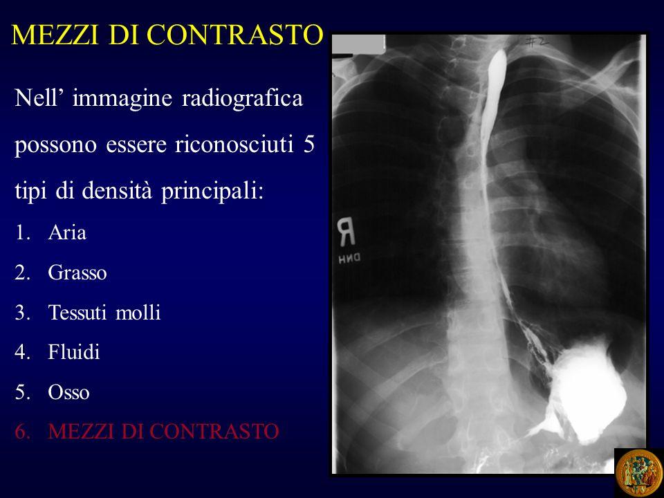 MEZZI DI CONTRASTO Nell immagine radiografica possono essere riconosciuti 5 tipi di densità principali: 1.Aria 2.Grasso 3.Tessuti molli 4.Fluidi 5.Oss