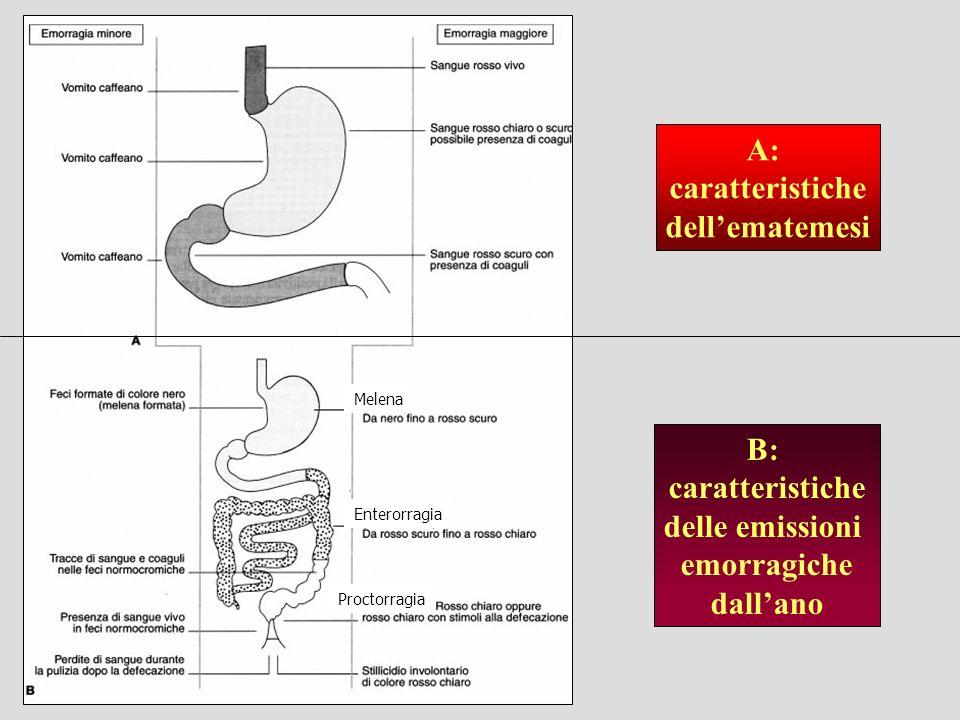 A: caratteristiche dellematemesi B: caratteristiche delle emissioni emorragiche dallano Enterorragia Melena Proctorragia