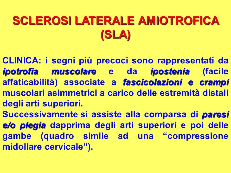 SCLEROSI LATERALE AMIOTROFICA (SLA) ipotrofia muscolareipostenia fascicolazioni e crampi CLINICA: i segni più precoci sono rappresentati da ipotrofia