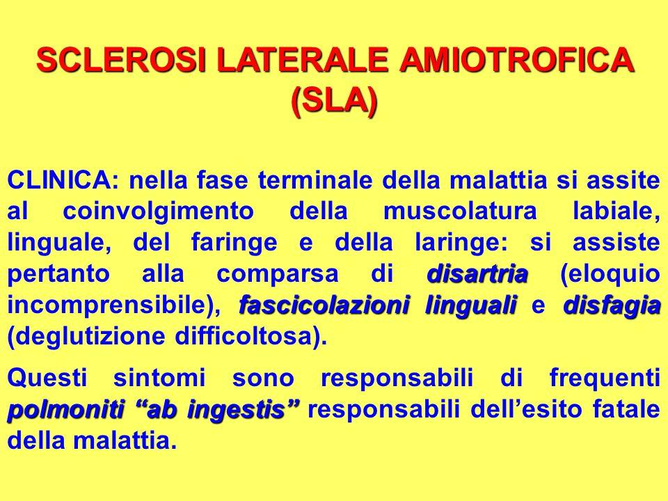 SCLEROSI LATERALE AMIOTROFICA (SLA) disartria fascicolazioni lingualidisfagia CLINICA: nella fase terminale della malattia si assite al coinvolgimento