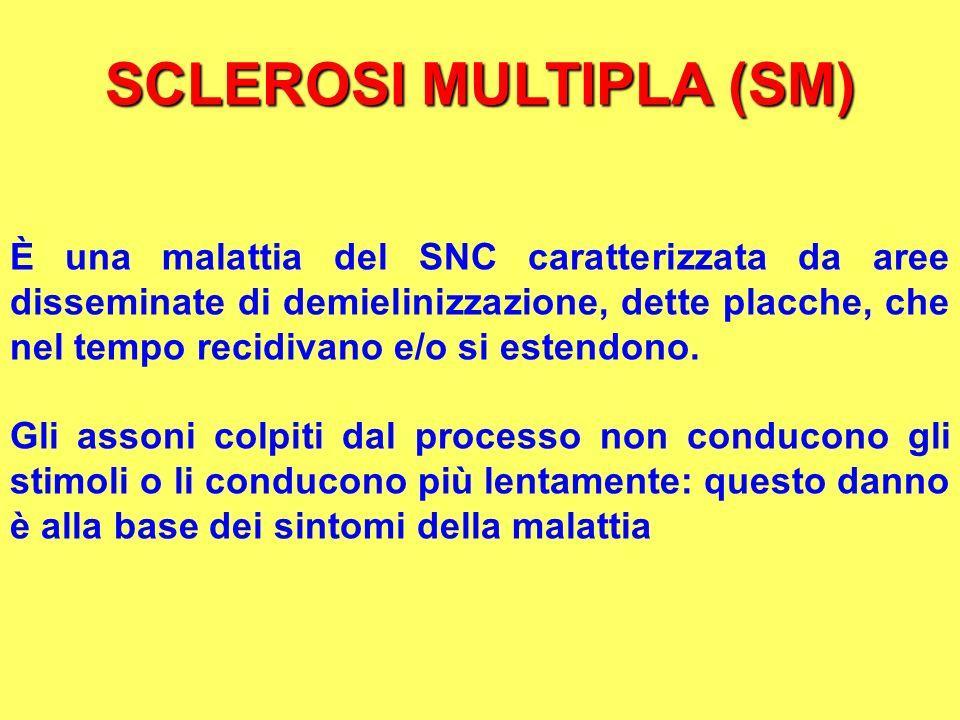 SCLEROSI MULTIPLA (SM) È una malattia del SNC caratterizzata da aree disseminate di demielinizzazione, dette placche, che nel tempo recidivano e/o si