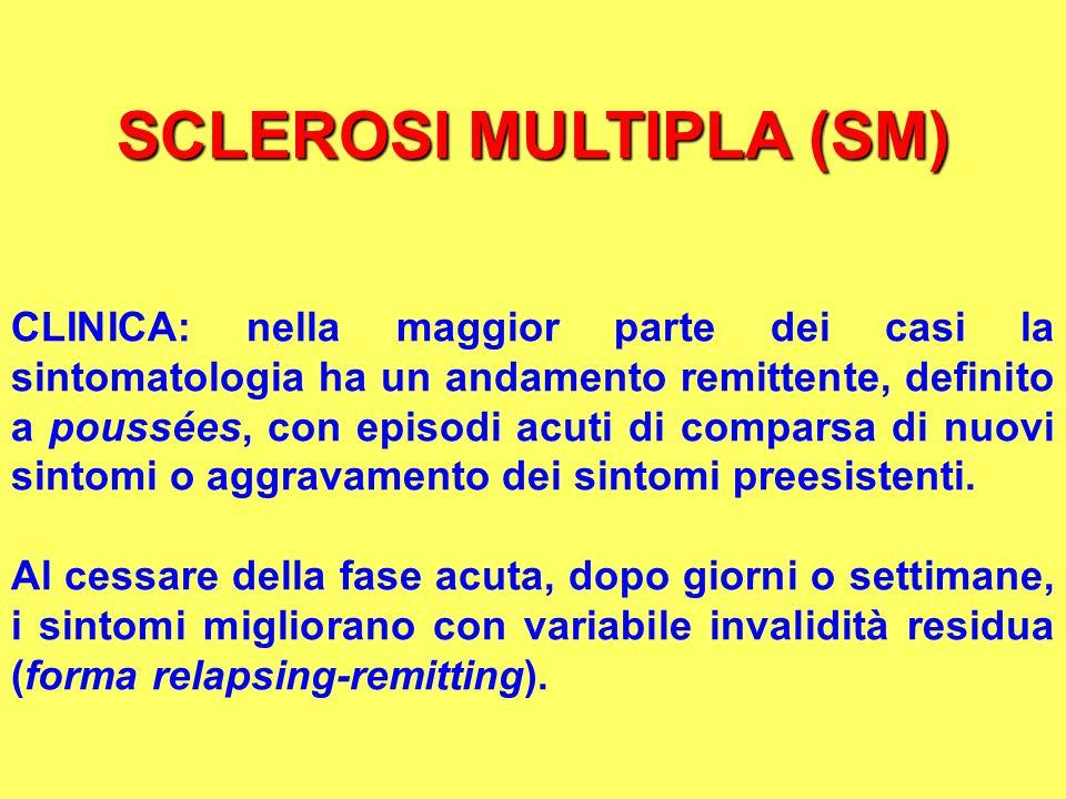 SCLEROSI MULTIPLA (SM) CLINICA: nella maggior parte dei casi la sintomatologia ha un andamento remittente, definito a poussées, con episodi acuti di c