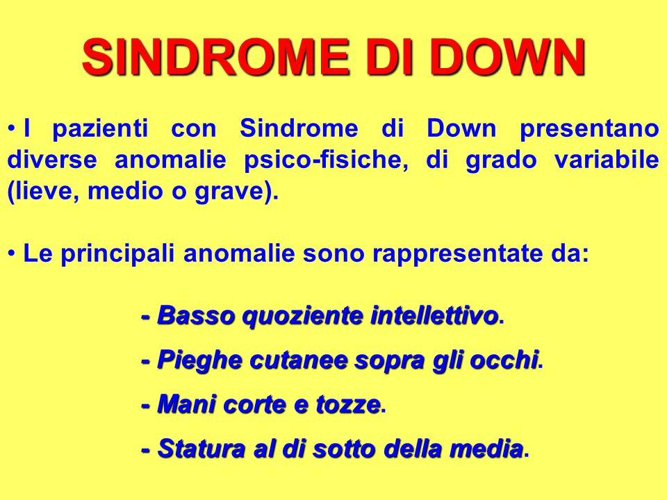 SINDROME DI DOWN I pazienti con Sindrome di Down presentano diverse anomalie psico-fisiche, di grado variabile (lieve, medio o grave). Le principali a