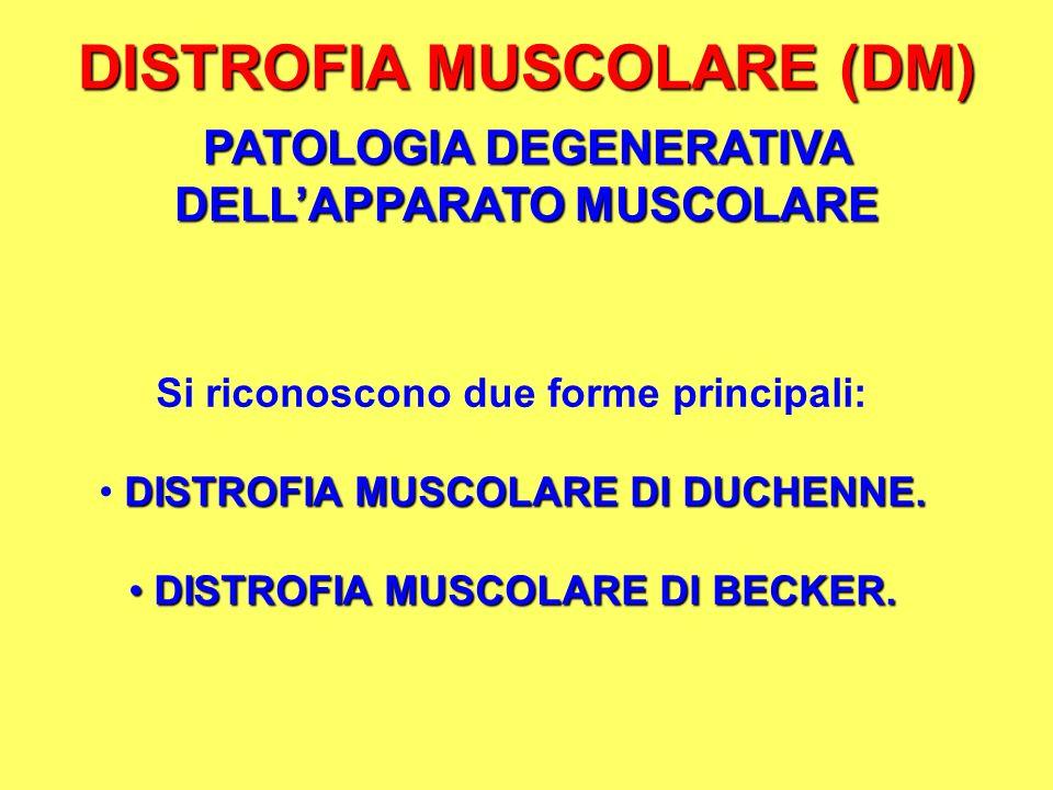 DISTROFIA MUSCOLARE (DM) PATOLOGIA DEGENERATIVA DELLAPPARATO MUSCOLARE Si riconoscono due forme principali: DISTROFIA MUSCOLARE DI DUCHENNE. DISTROFIA