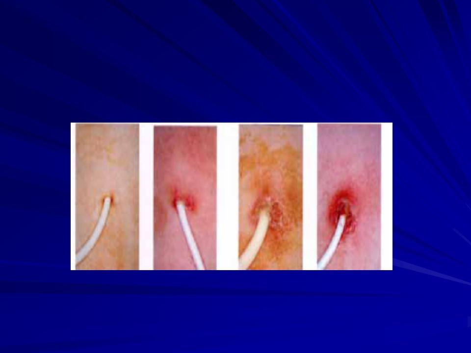 QUADRO CLINICO Come valutare la febbre Conta dei neutrofili Controllo del sito di inserzione del CVC Controllo di lesioni cutanee Andamento dellalvo e/o presenza di dolori addominali Mucosite
