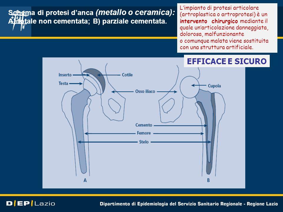 Schema di protesi danca (metallo o ceramica): A) totale non cementata; B) parziale cementata. Limpianto di protesi articolare (artroplastica o artropr