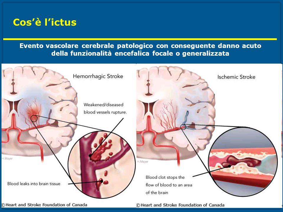 Cosè lictus Evento vascolare cerebrale patologico con conseguente danno acuto della funzionalità encefalica focale o generalizzata
