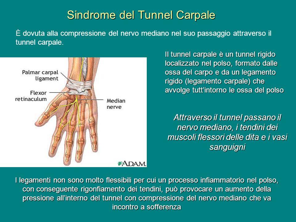 Sindrome del Tunnel Carpale È dovuta alla compressione del nervo mediano nel suo passaggio attraverso il tunnel carpale. Il tunnel carpale è un tunnel