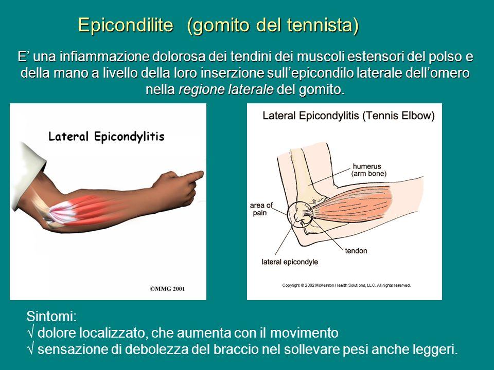 Epicondilite (gomito del tennista) E una infiammazione dolorosa dei tendini dei muscoli estensori del polso e della mano a livello della loro inserzio