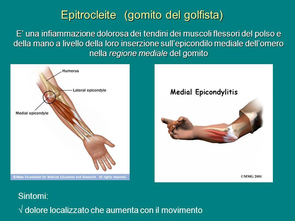 Epitrocleite (gomito del golfista) E una infiammazione dolorosa dei tendini dei muscoli flessori del polso e della mano a livello della loro inserzion