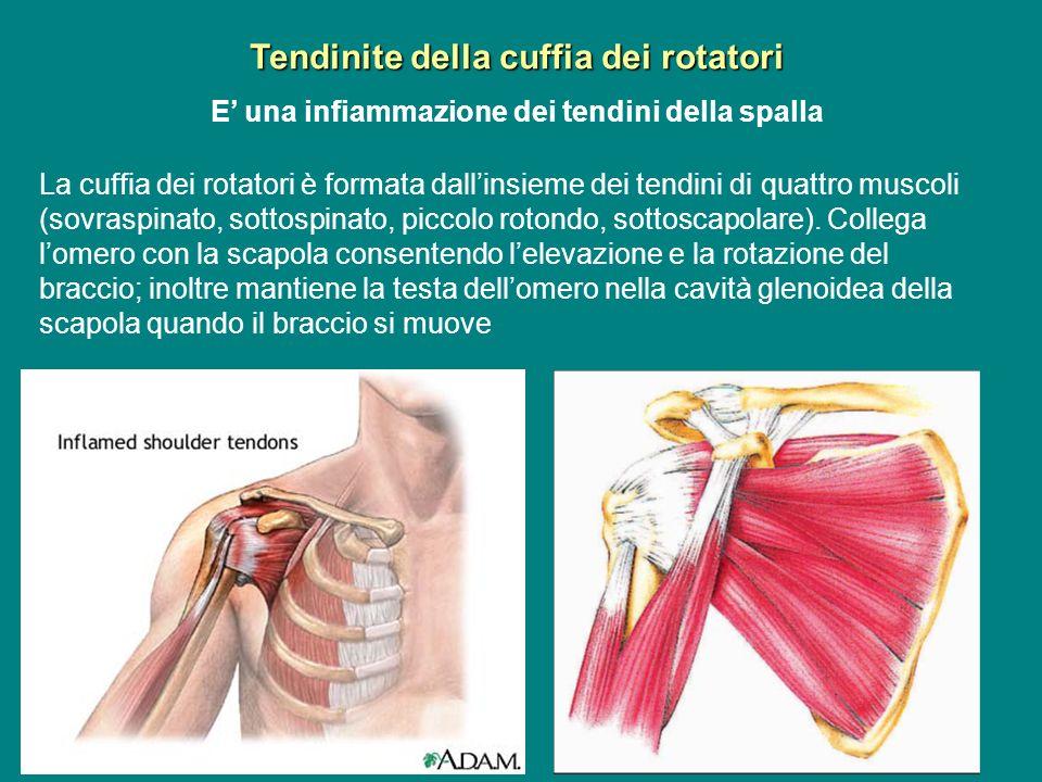 Tendinite della cuffia dei rotatori E una infiammazione dei tendini della spalla La cuffia dei rotatori è formata dallinsieme dei tendini di quattro m