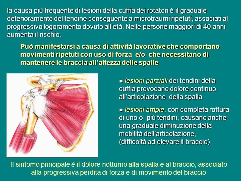 la causa più frequente di lesioni della cuffia dei rotatori è il graduale deterioramento del tendine conseguente a microtraumi ripetuti, associati al