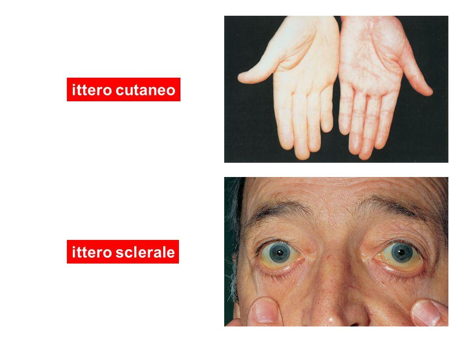 ittero cutaneo ittero sclerale