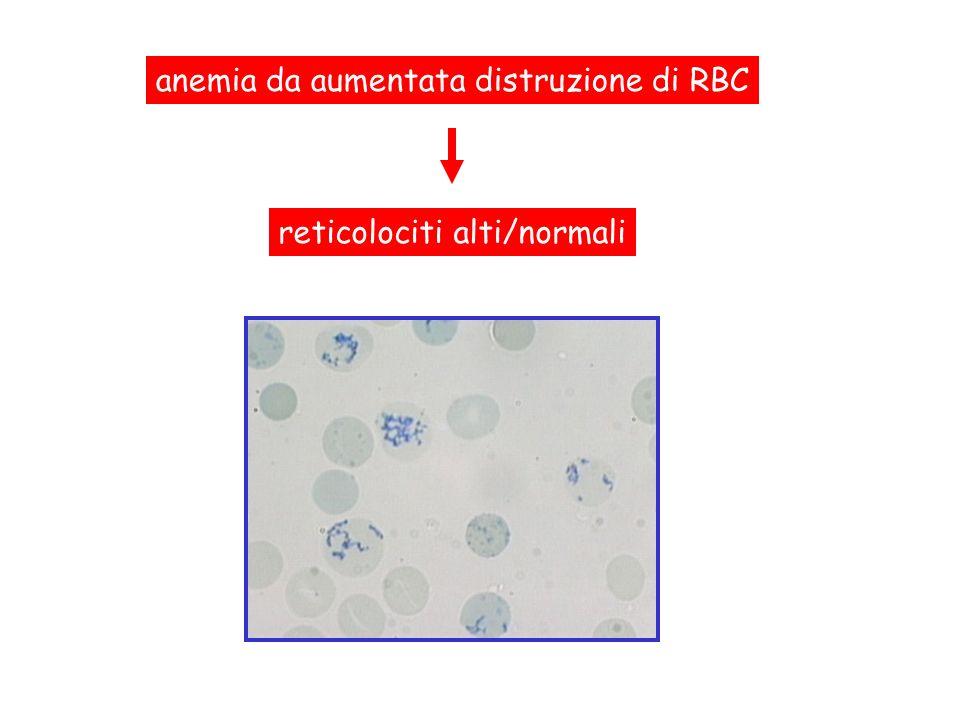 aumentata distruzione di RBC nel sangue periferico assenza di eritropoiesi inefficace a livello midollare iperplasia eritroide a livello midollare Anemia emolitica: emolisinormale