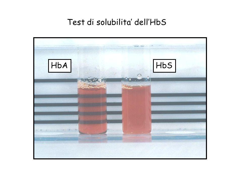 Test di solubilita dellHbS HbSHbA