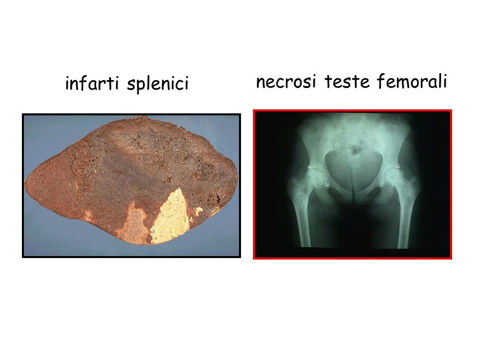 infarti splenici necrosi teste femorali