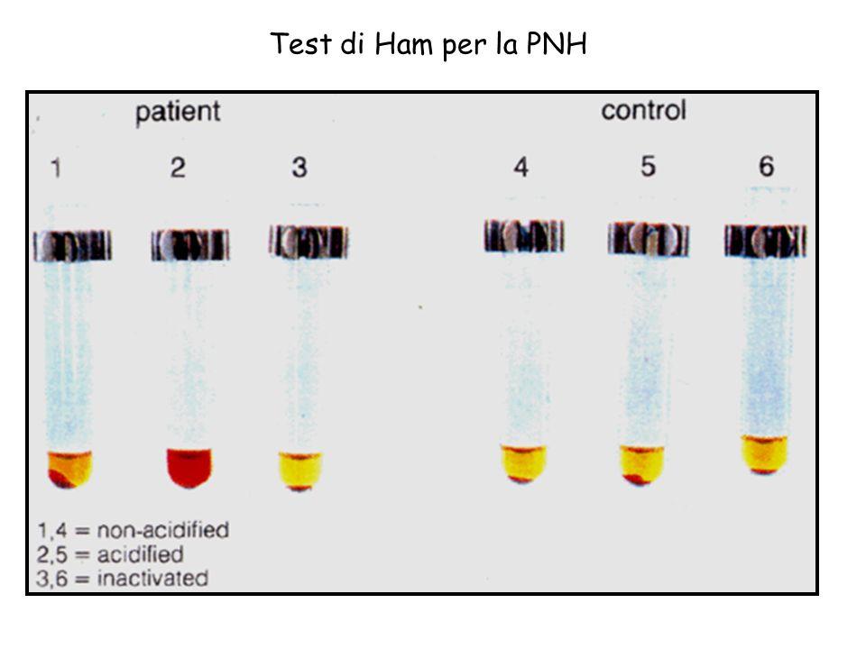 Test di Ham per la PNH