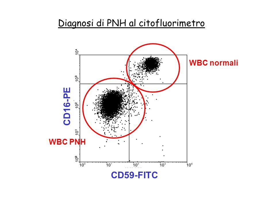 Diagnosi di PNH al citofluorimetro WBC normali WBC PNH CD59-FITC CD16-PE