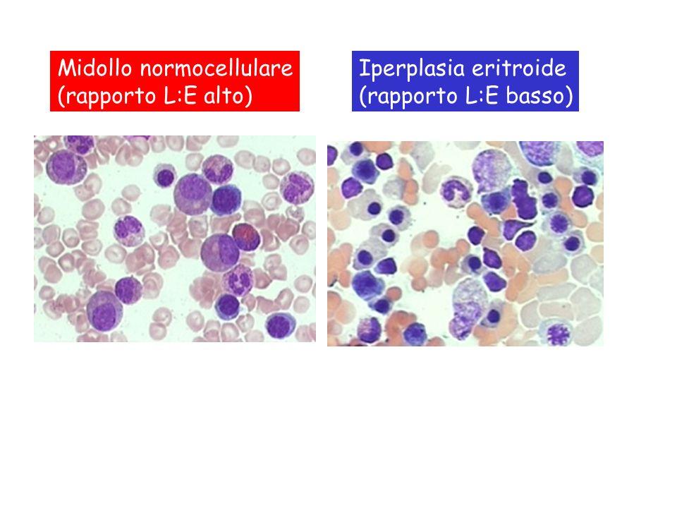 Iperplasia eritroide in anemia emolitica