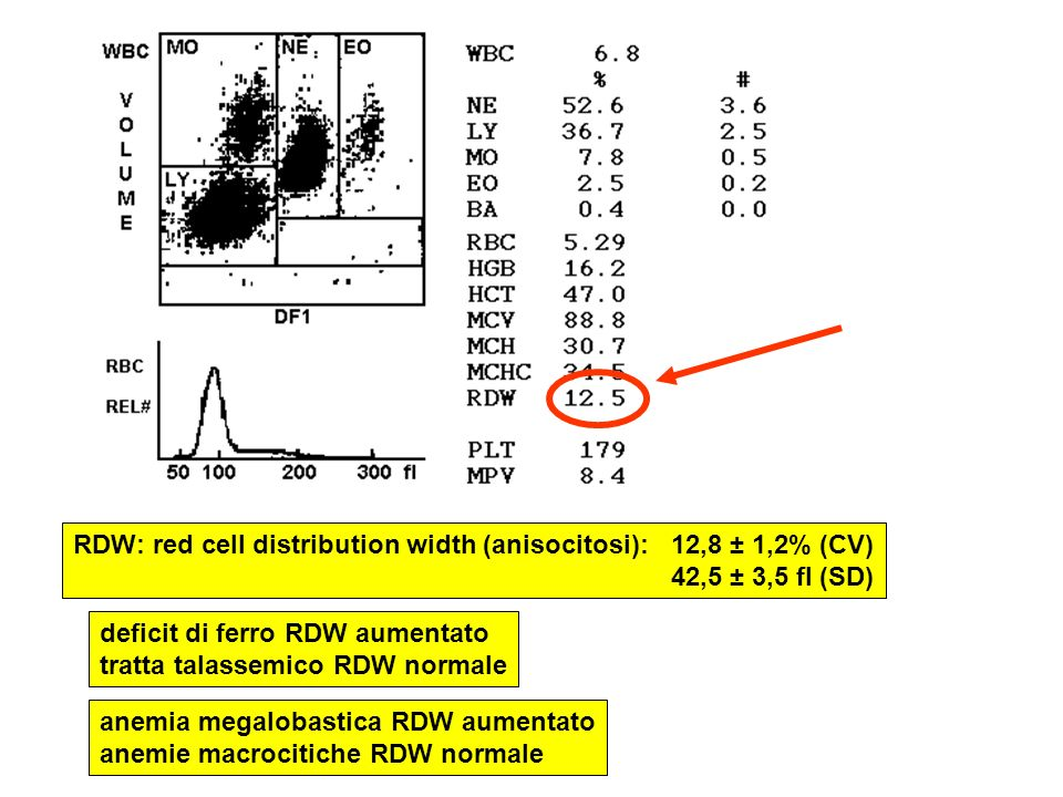 RDW: red cell distribution width (anisocitosi): 12,8 ± 1,2% (CV) 42,5 ± 3,5 fl (SD) deficit di ferro RDW aumentato tratta talassemico RDW normale anem