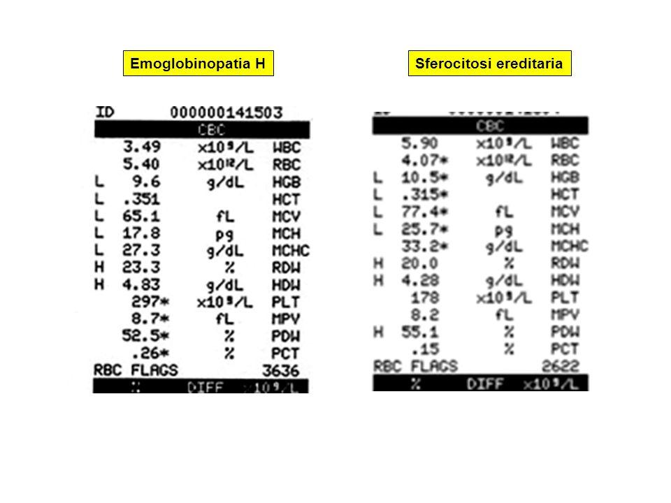 Sferocitosi ereditariaEmoglobinopatia H