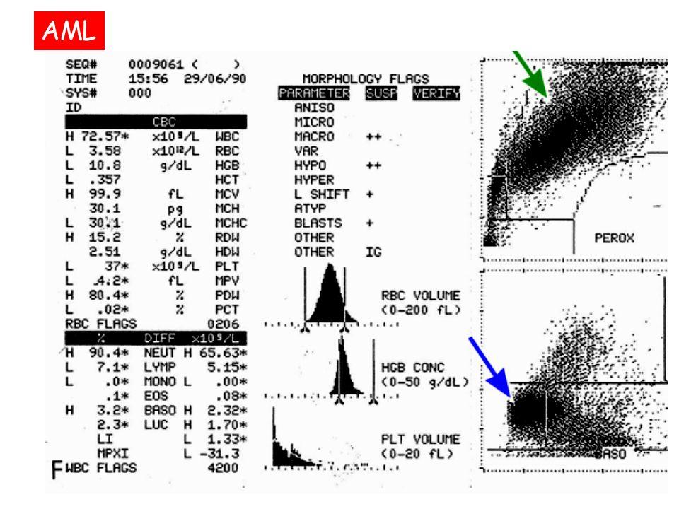 PARAMETRI BIOMETRICI ERITROCITARI MCV = Mean Corpuscolar Volume: 82 - 92 fl MCH = Mean Corpuscolar Hemoglobin: 28 - 31 pg MCHC = Mean Corpuscolar Hemoglobin Concentration: 31 - 34 g/dl