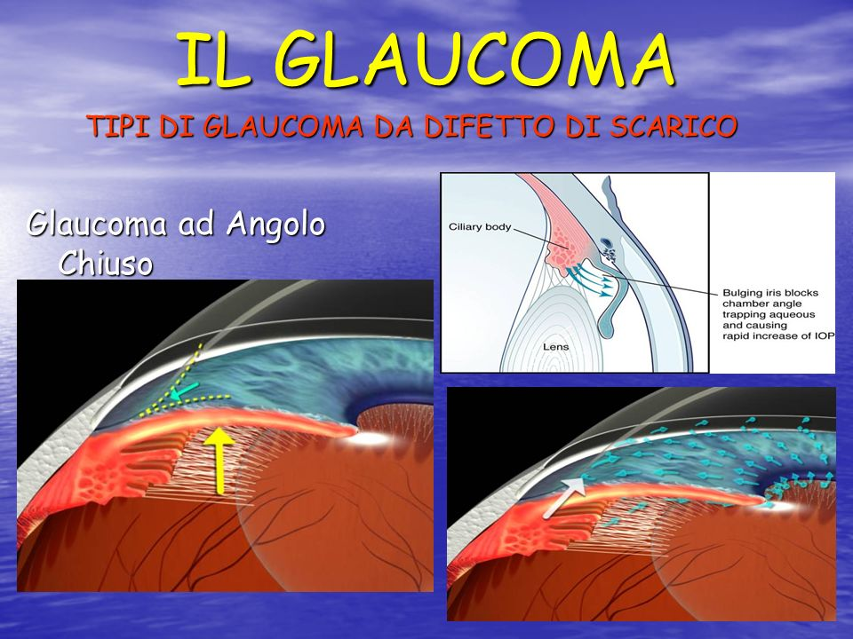 IL GLAUCOMA TIPI DI GLAUCOMA DA DIFETTO DI SCARICO Glaucoma ad Angolo Chiuso