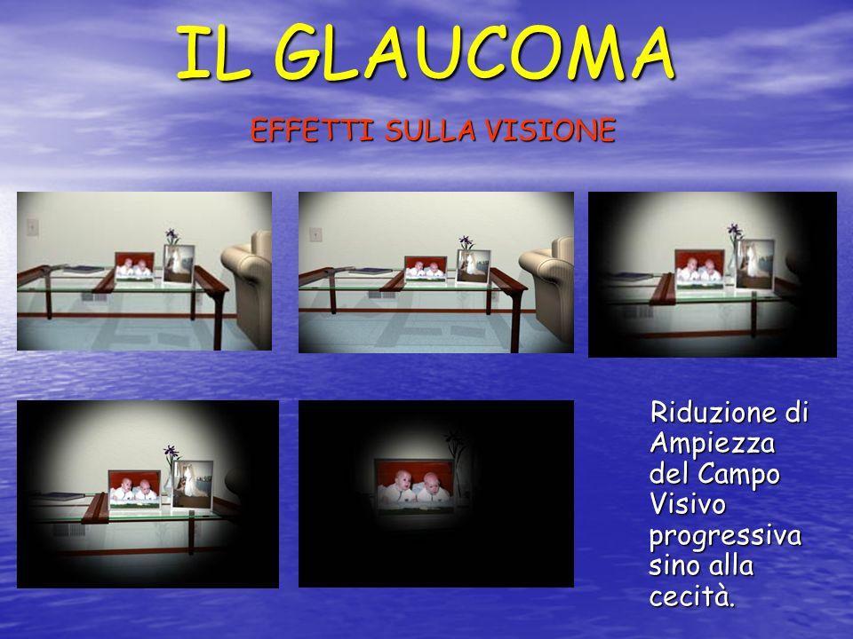 IL GLAUCOMA EFFETTI SULLA VISIONE Riduzione di Ampiezza del Campo Visivo progressiva sino alla cecità. Riduzione di Ampiezza del Campo Visivo progress
