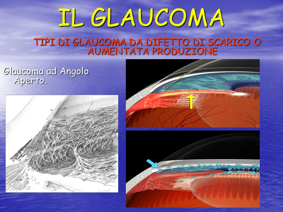 IL GLAUCOMA TIPI DI GLAUCOMA DA DIFETTO DI SCARICO O AUMENTATA PRODUZIONE Glaucoma ad Angolo Aperto.