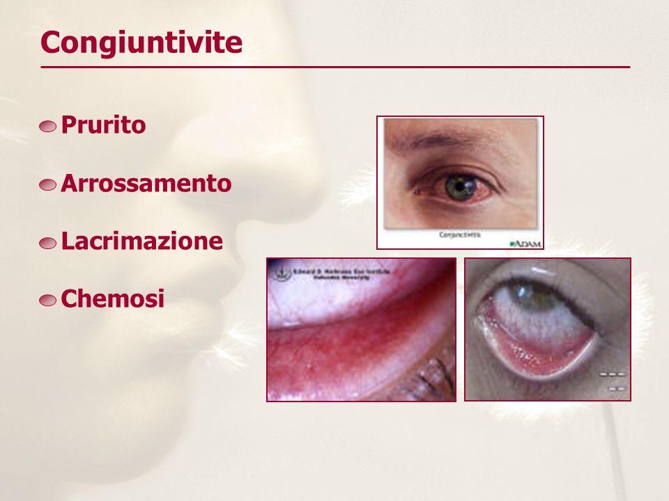 Congiuntivite Prurito Arrossamento Lacrimazione Chemosi