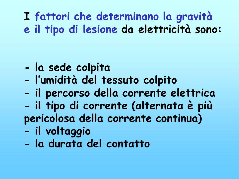 Si verifica quando il corpo umano interrompe il flusso di corrente tra due punti in tensione (differenza di potenziale) in un circuito elettrico La qu