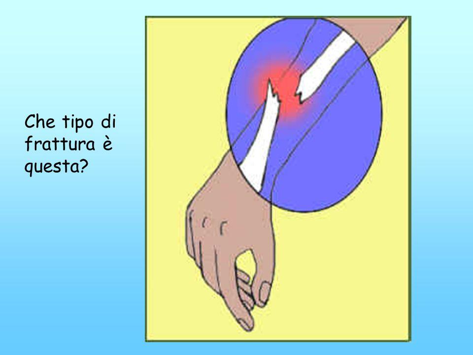 Rottura di un osso causata da una forza tale che supera la resistenza dellosso stesso. Una frattura può essere: composta: senza spostamento dei moncon