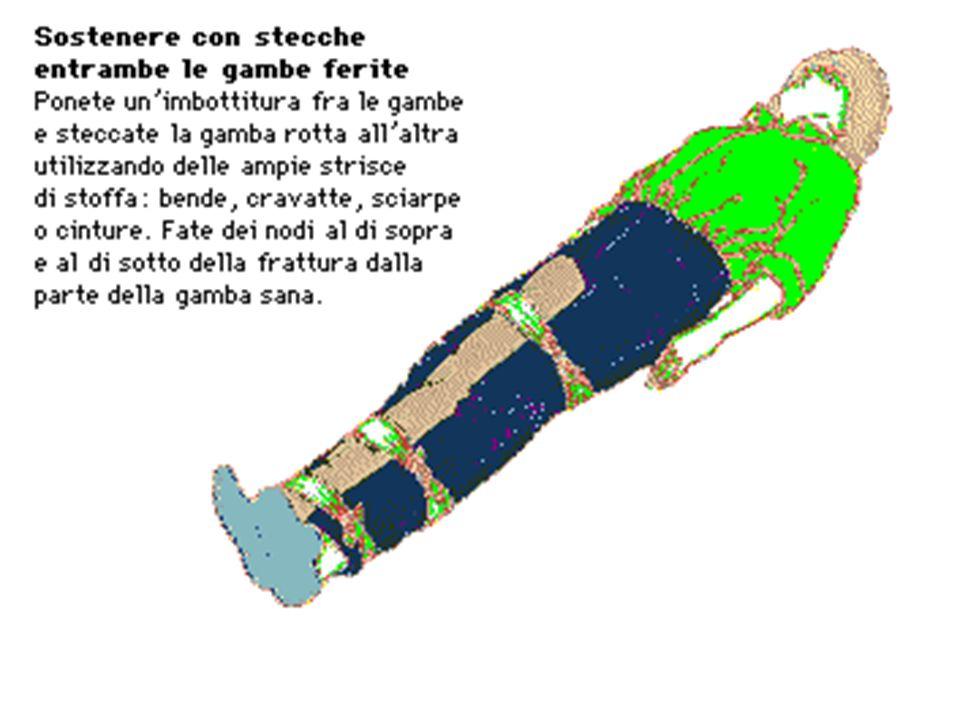 vertebre o il bacino: evitare il più possibile movimenti; se necessario uno spostamento devono collaborare almeno tre persone ponendo sotto il soggett