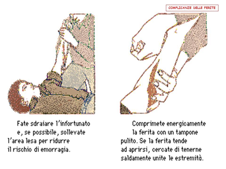 EMORRAGIA MODESTA, VENOSA O MISTA; CONTENIBILE ; NON rischio di vita - sdraiare linfortunato senza rialzare il capo. Nel caso di braccia e gambe solle
