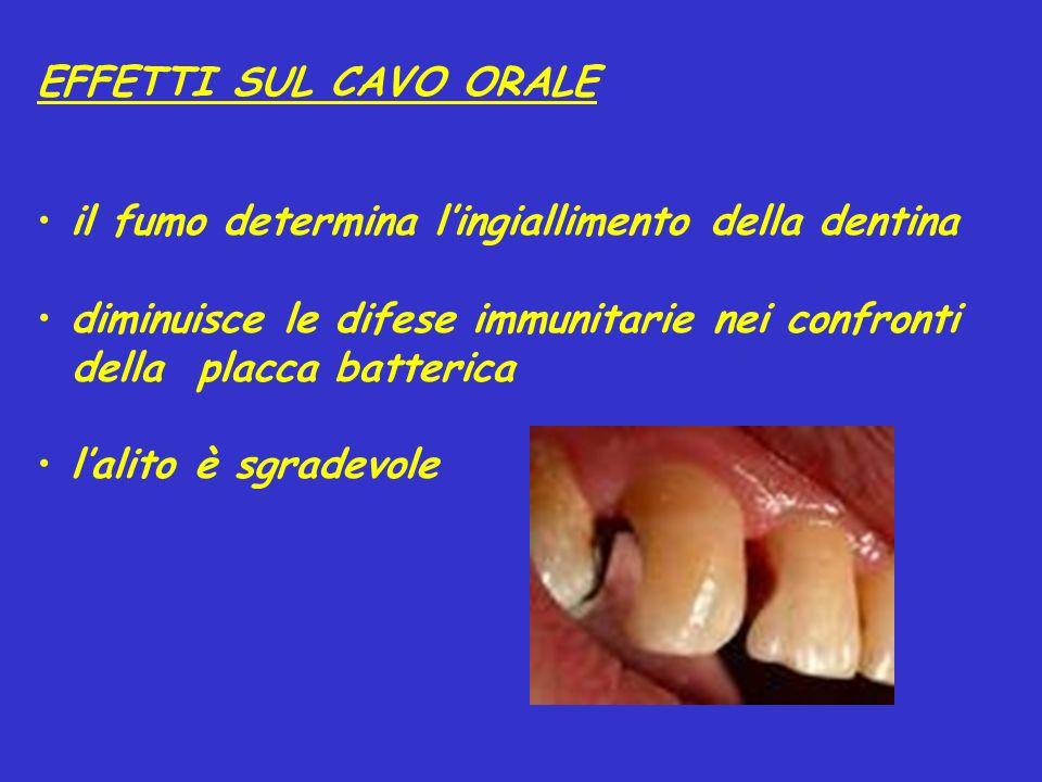 EFFETTI SUL CAVO ORALE il fumo determina lingiallimento della dentina diminuisce le difese immunitarie nei confronti della placca batterica lalito è sgradevole
