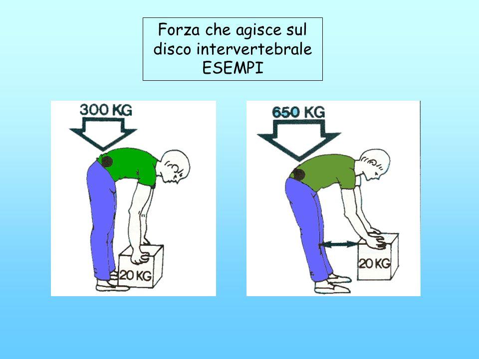 Forza che agisce sul disco intervertebrale ESEMPI