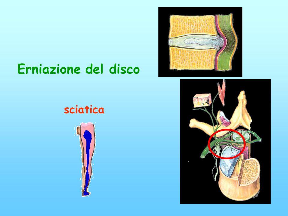 Erniazione del disco sciatica
